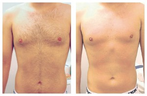 Remove Chest Hair - Laser Hair Removal