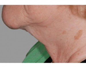 Exilis Pictures