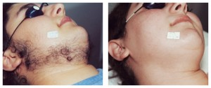 Face Hair Reduction - Laser Hair Removal