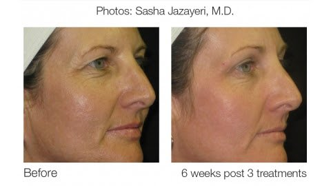 Sublative Rejuvenation Skin Treatment