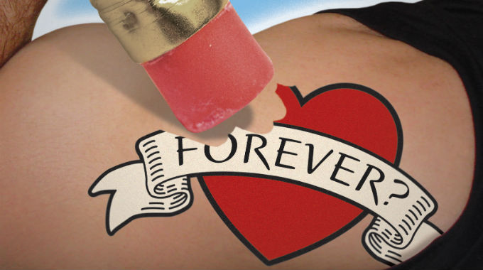 Remove Tattoos - Laser Tattoo Removal