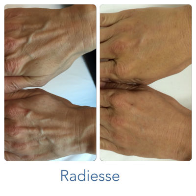 Anti-Aging Youthful Hands
