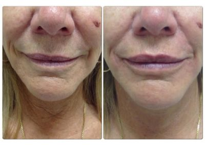 Before and After Pictures Lip Filler 3