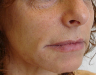 Cosmetic Skin Care After Pic