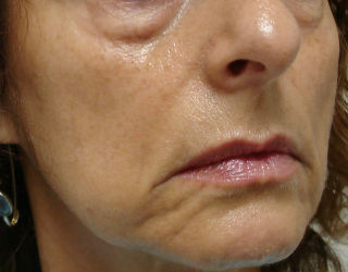 Cosmetic Skin Care Before Pic