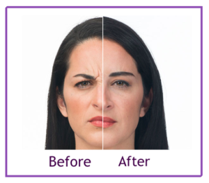 Remove Unwanted Wrinkles