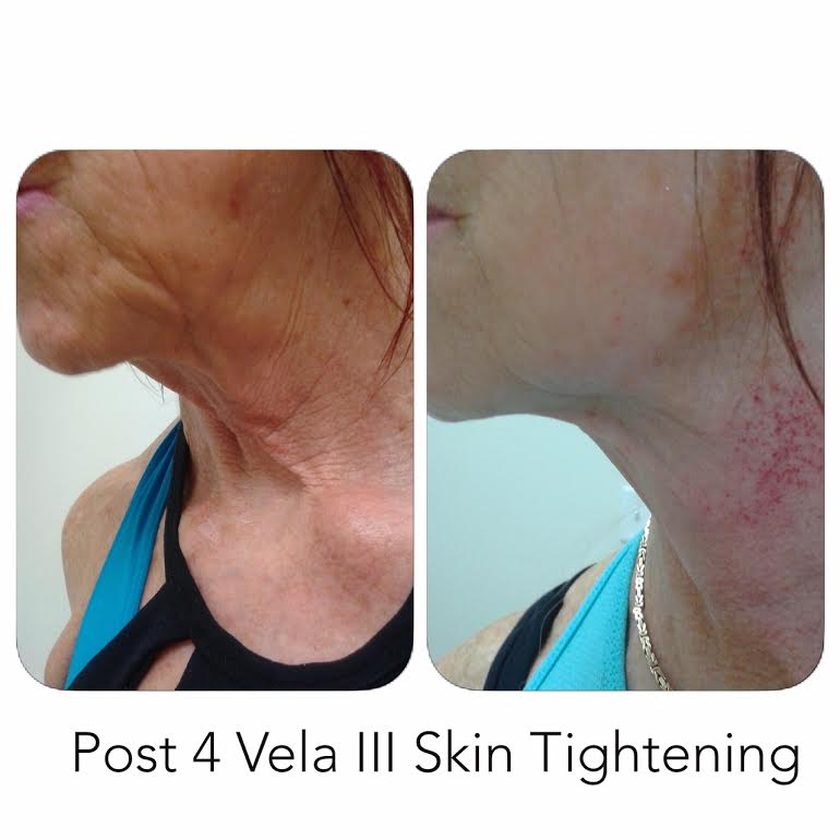 Post 4 Vela III Skin Tightening