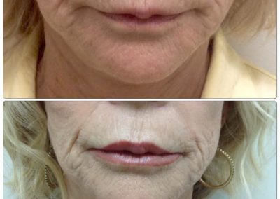 Before and After Pictures Lip Filler 2