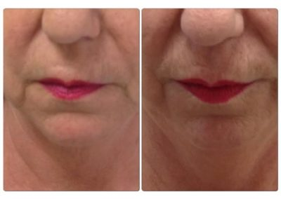 Before and After Pictures Lip Filler 4
