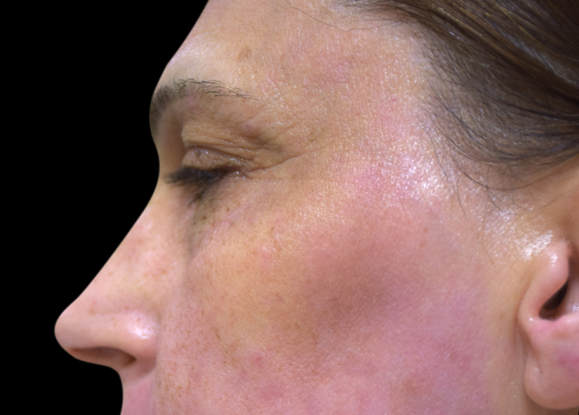 Skin Tightening with Exilis Ultra 360 - BeautySmart Medical Spa