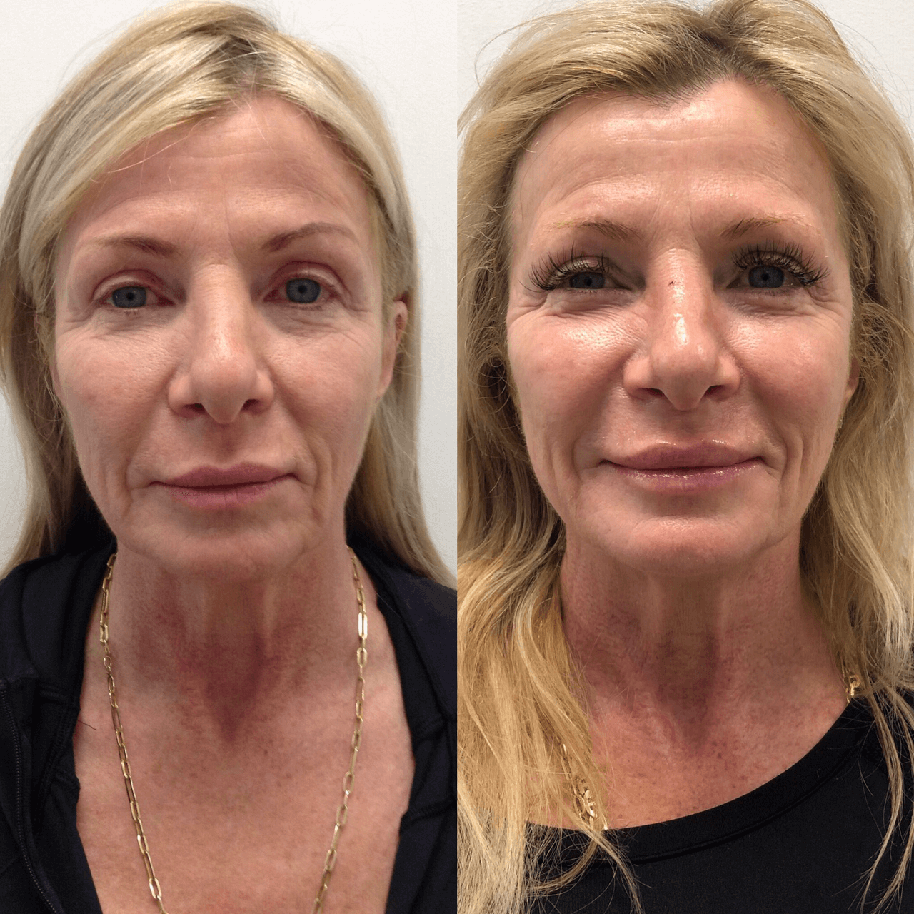 AESTHETIC INJECTABLES / PDO THREAD LIFT - BeautySmart Medical Spa